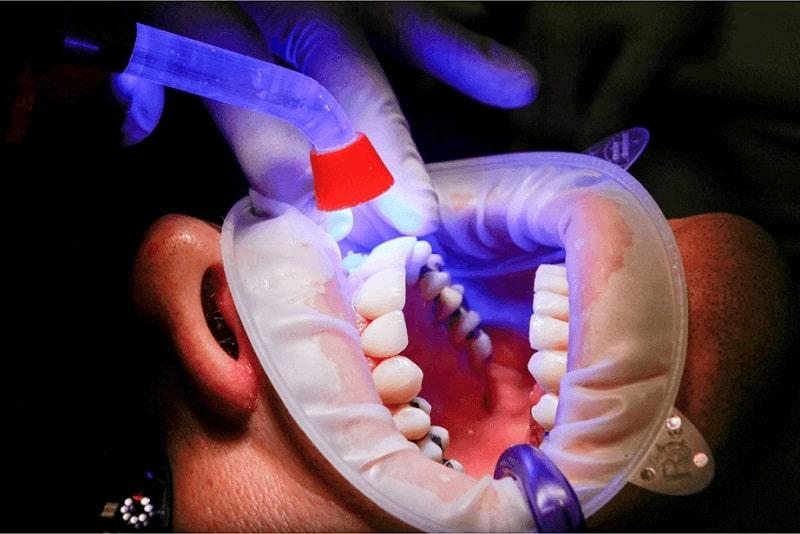 استفاده لیزر لیزر در دندانپزشکی